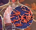 New TB vaccine effective in half of the population in phase II trials