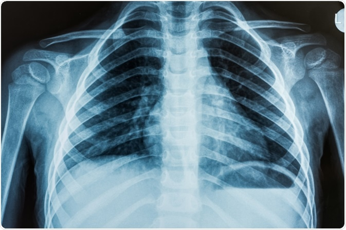 Chest X-ray of patient being tested for ARDS