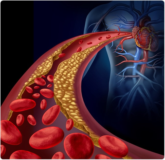 Clogged artery and atherosclerosis disease medical concept with a three dimensional human artery with blood cells that is blocked by plaque buildup of cholesterol as a symbol of vascular diseases. Image Credit: Lightspring / Shutterstock