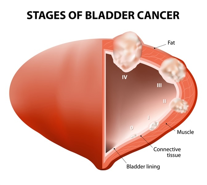 Diagram showing the stages of bladder cancer. Image Credit: Designua / Shutterstock