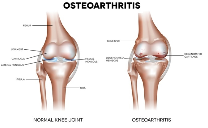 Knee Osteoarthritis and normal joint detailed anatomy. Image Credit: Nita_Nita / Shutterstock