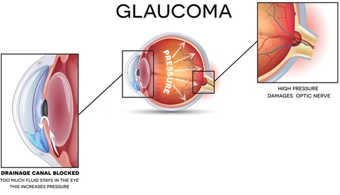Glaucoma and healthy eye detailed structure. Image Credit: Tefi / Shutterstock