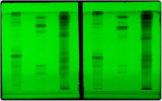 Thin layer chromatography. Image Credit: Sruilk / Shutterstock