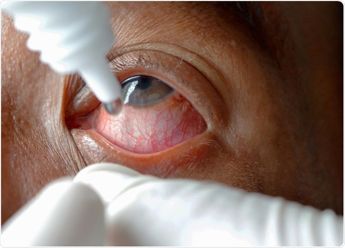 Close-up eye while doctor applying eye drop. Image Credit: Anukool Manoton / Shutterstock