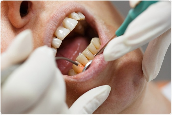 Dental laser used on a patient on soft and hard tissue. Image Credit: zlikovec / Shutterstock