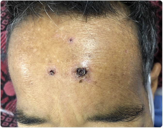 Multiple black crusts at forehead in middle age man who presented with severe sepsis and septic shock. Image Credit: TisforThan / Shutterstock