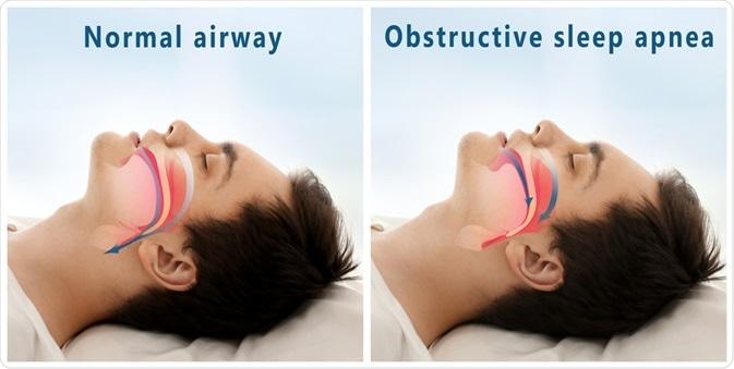 Diagram la mostra delle vie respiratorie normali contro le vie respiratorie di OSA dell