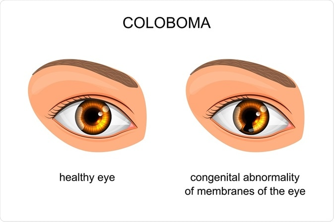 Normal eyes compared to person with Coloboma - By Artemida-psy