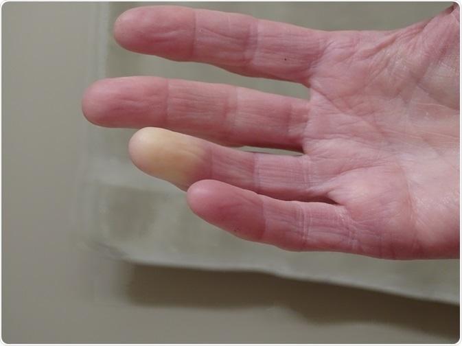 Illustration de patient présentant le syndrome de Raynaud - main tourne blanc en réponse à la température froide - pris par Barb Elkin