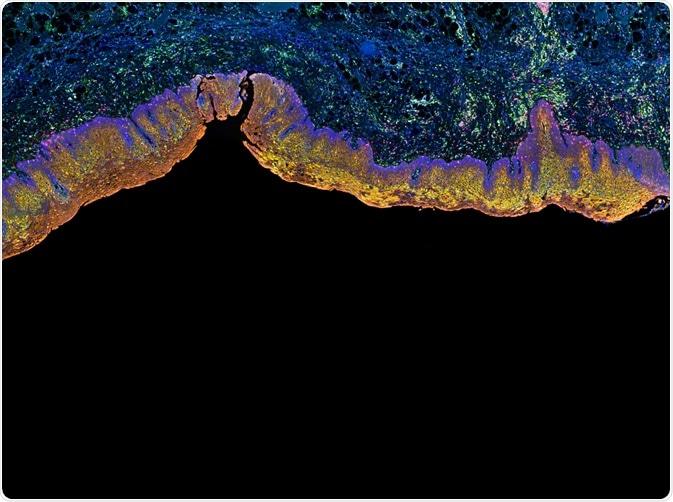Tessuti fluorescenti macchiati facendo uso delle tecniche di IHC - da Carl Du Pont