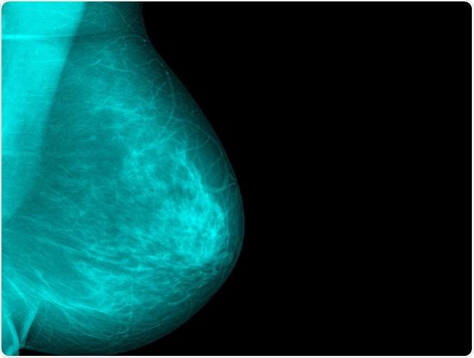 Photo of breast tissue