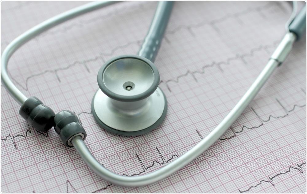 ECG che mostra fibrillazione atriale con lo stetoscopio sulla cima