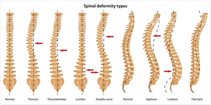 Spinal deformity types. Anterior view and lateral view. Illustration Credit: Olga Bolbot / Shutterstock