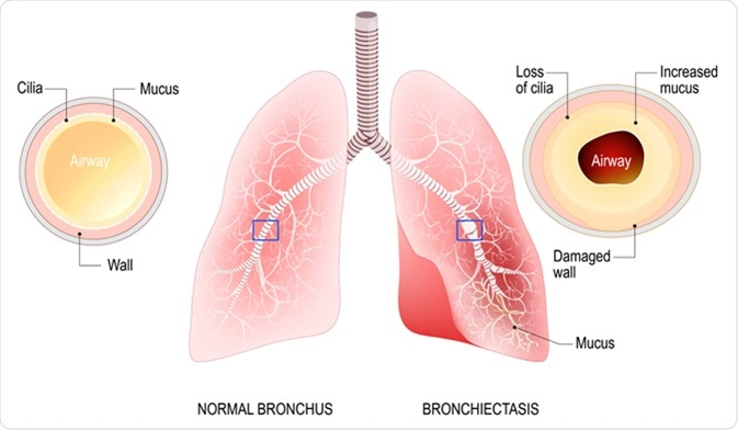 Bronchiectasis. Normal bronchus and bronchiectasis. Enlarged small airways that collect mucus and cause recurrent lung infections. Image Credit: Designua / Shutterstock