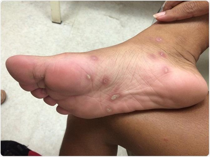 Syphilis secondaire des pieds. Crédit d