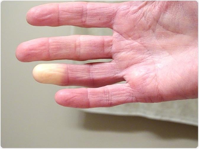 Adult hand with Raynaud