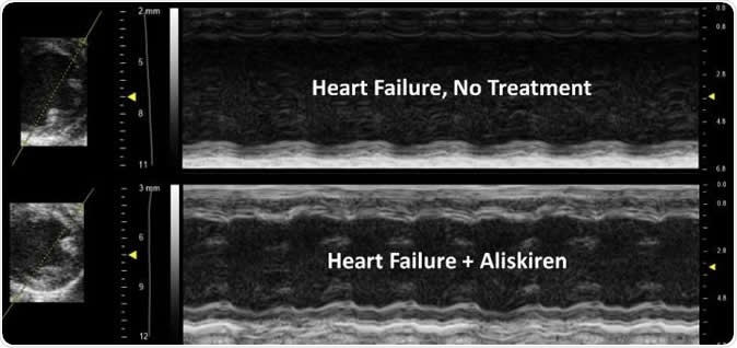 The treated image shows improved contractility of the heart, less ventricle/chamber dilation and improvement in wall thickness compared to the untreated heart. Image Credit: UA College of Medicine Phoenix