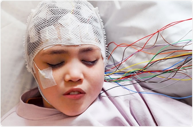 Girl with EEG electrodes attached to her head for medical test Credit: Vasara / Shutterstock