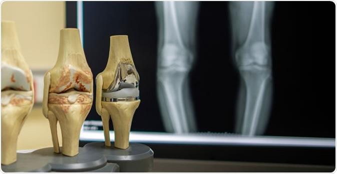 O modelo da articulação do joelho mostrado o processo de osteodistrofia do joelho e da cirurgia total da substituição do joelho. Crédito de imagem: Peter Porrini/Shutterstock