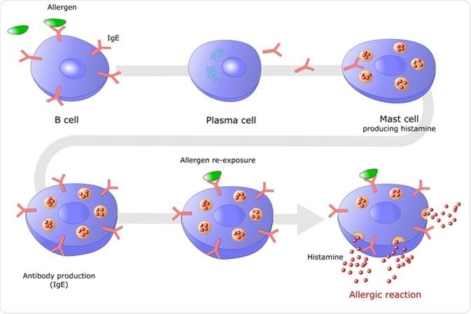 Allergic reaction mediated via E type Immunoglobulin (IgE) with histamine production - Image Credit: ellepigrafica / Shutterstock