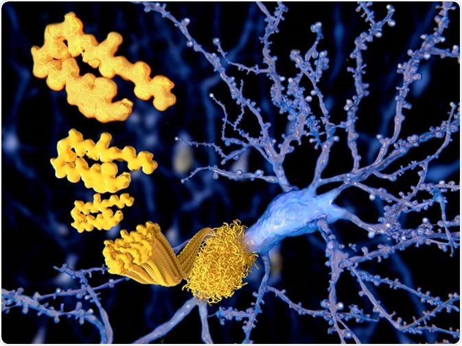 Amyloid plaques growing on a neuron - Illustration Credit: Juan Gaertner / Shutterstock