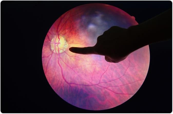 Diabetic Retinopathy. Image Credit: Anukool Manoton / Shutterstock