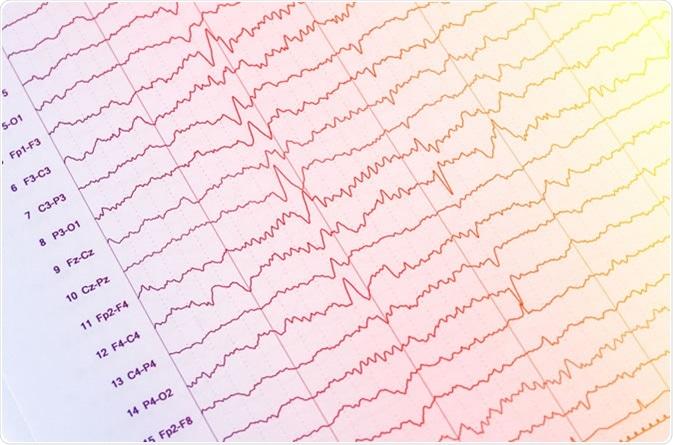 EEG - electroencefalograma output - crédito de imagem: Chaikom/Shutterstock