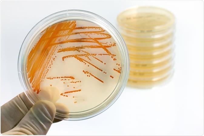 Colonies of bacteria Streptococcus agalactiae in culture medium plate. Image Credit: Angellodeco / Shutterstock