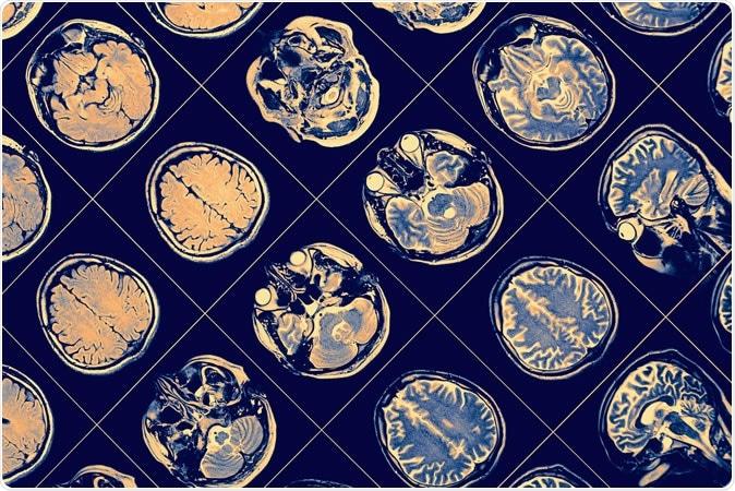 MR image of human brain. Image Credit: sfam_photo / Shutterstock