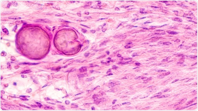 Stereotactic brain biopsy smear cytology of a meningioma, a benign brain tumor of the meninges, showing fascicles of spindle cells with psammoma bodies. - Image Credit: David A. Litman / Shutterstock
