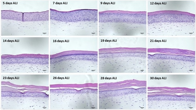 H&E images of the Labskin sections show that the stratum corneum gets thicker with time.