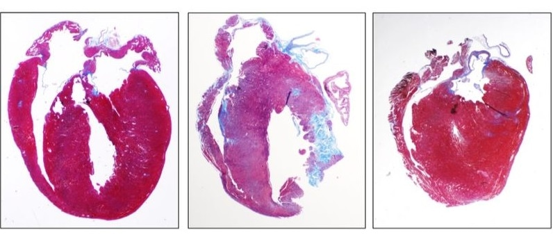 New drug treats inflammation related to inherited heart disease in young athletes
