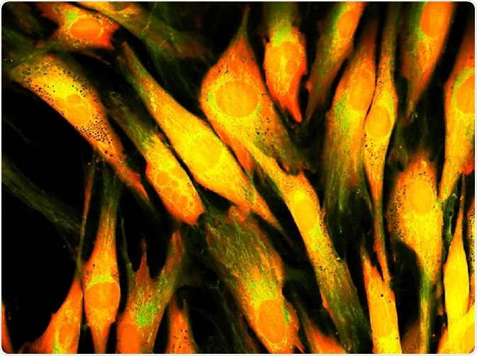 Human skin cells under confocal microscope