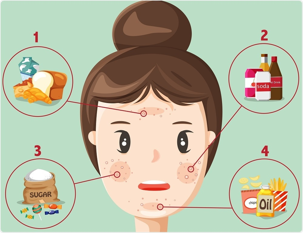 Acne and diet - infographic