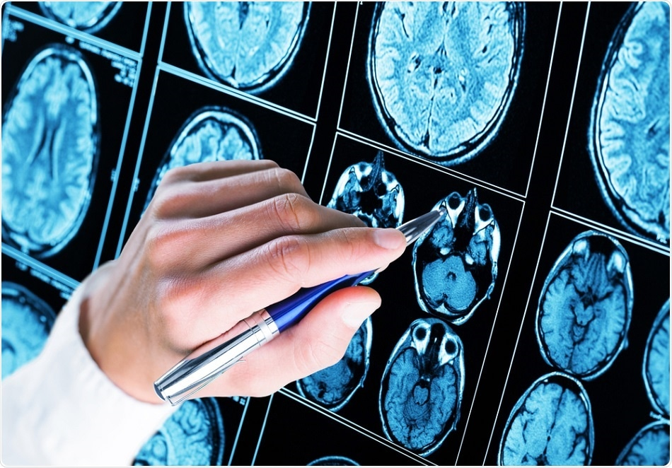 brain-scan-epilepsy
