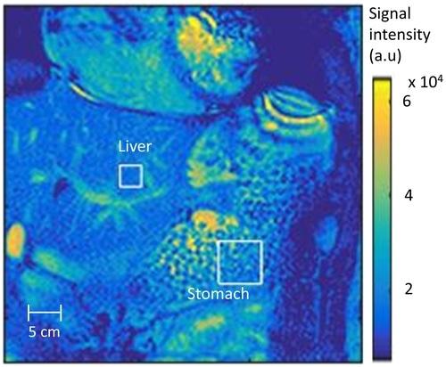 Os pesquisadores desenvolvem o método revolucionário usando MRI para diagnosticar a desordem digestiva