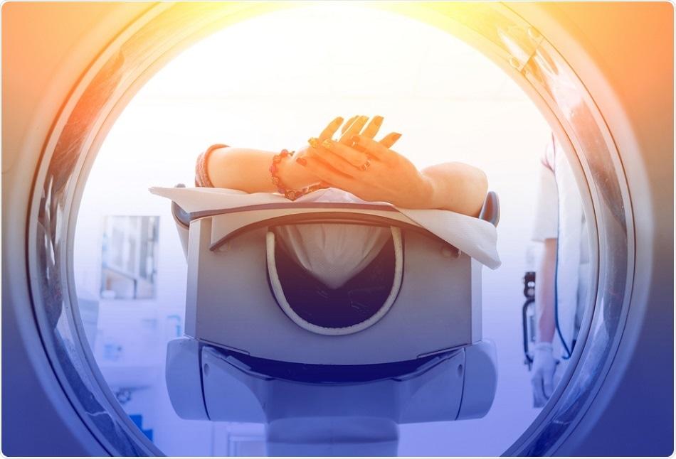 radiothérapie-intestin-profil