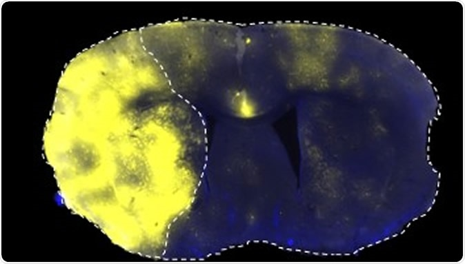 Fluorescently labelled liposomes selectively translocated into the stroke area left side of brain 1