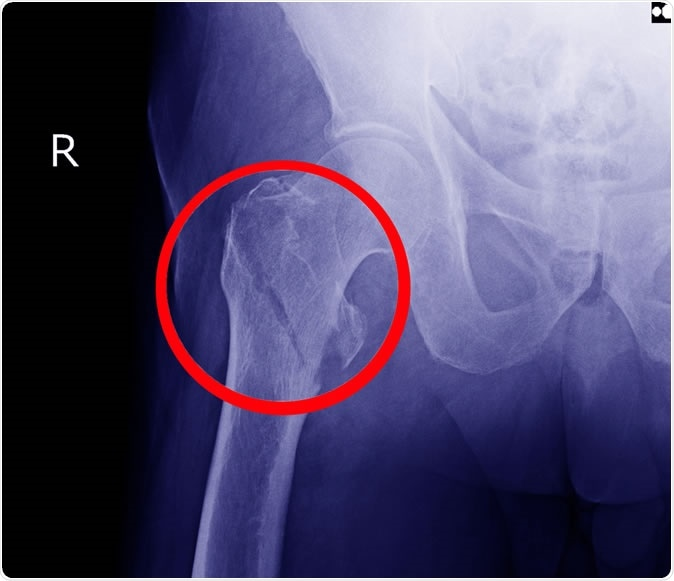 Hip fracture X-ray. Image redit: Richman Photo / Shutterstock