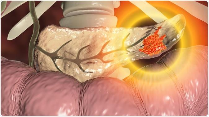 Pancreatic cancer, malignant tumor of pancreas, 3D illustration. Credit: Kateryna Kon / Shutterstock