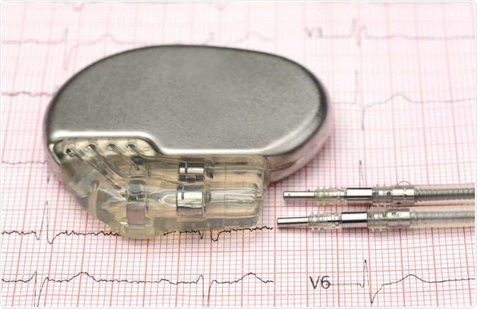 Close up of pacemaker on electrocardiograph. Image Credit: Swapan Photography / Shutterstock