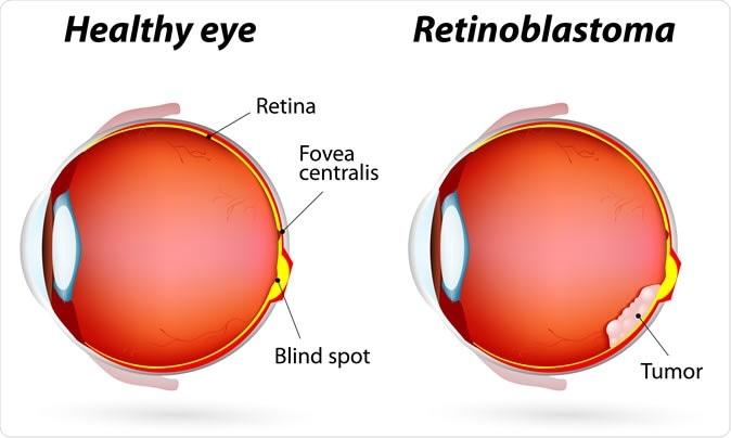 Healthy eye and Retinoblastoma.  Image Credit: Designua / Shutterstock