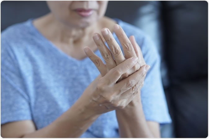 No studies have assessed the effect of methotrexate (MTX) in osteoarthritis of the hand (HOA). The purpose of this study was to examine the effect of MTX on pain and structural progression in symptomatic erosive HOA (EHOA). - Image Credit: one photo / Shutterstock