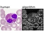 New AI-driven approach for single blood cell classification
