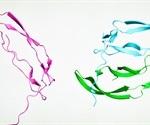 Proteomics & DIA Mass Spectrometry in Neurodegenerative Disease Research