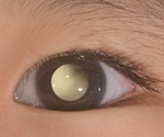 Novel detection method for retinoblastoma