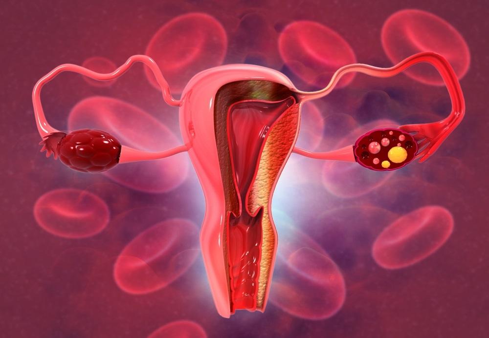 Cancro cervicale