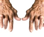 Rheumatoid arthritis: biologics useful in young and old alike