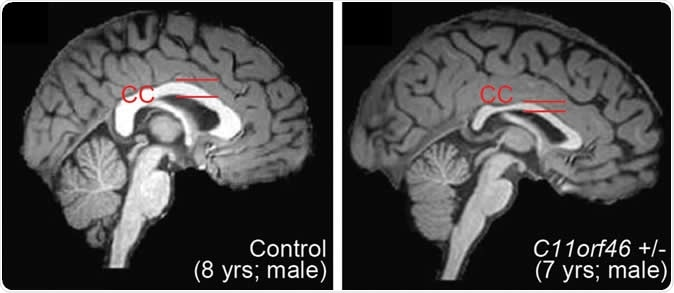 Healthy human brain (left) and brain with WAGR syndrome, in which the corpus callosum is thinner and misformed. Image Credit: Nature Communications