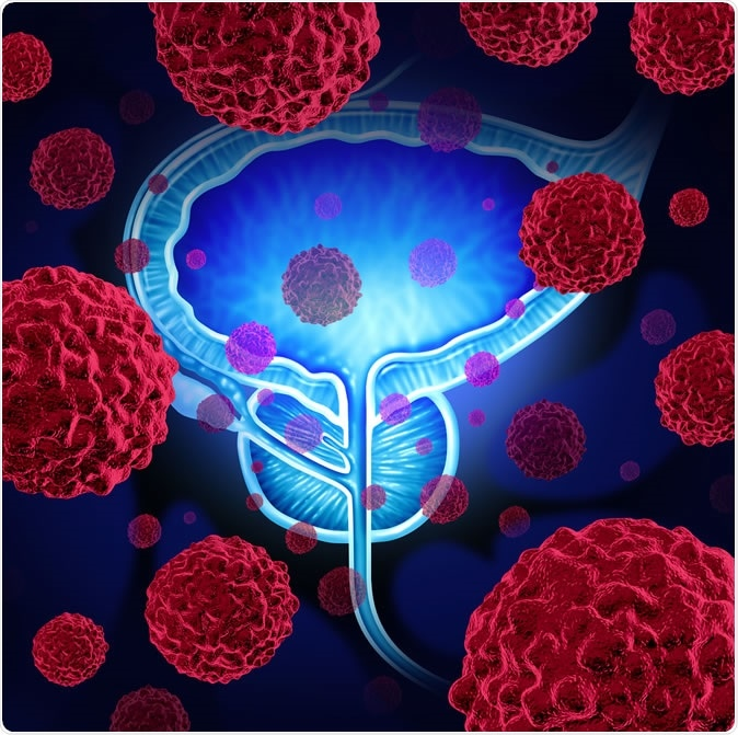 Prostate cancer danger medical concept illustration. Nearly one in six deaths from prostate cancer could be prevented if targeted screening was introduced for men at a higher genetic risk of the disease, according to a new UCL-led computer modelling study. Image Credit: Lightspring